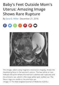 https://www.livescience.com/57292-uterine-rupture-amniotic-sac.html Pęknięcie macicy